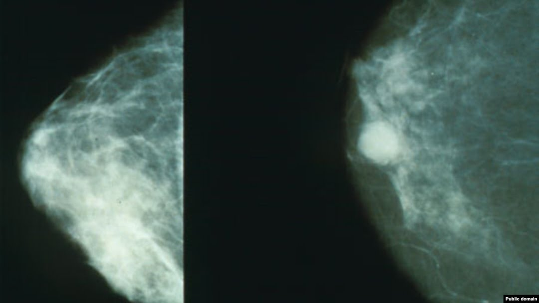 Кўкрак маммограммаси: соғлом кўкрак (чапда) ва саратонга салинган кўкрак.